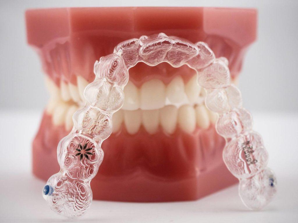 Zahnspange und durchsichtige Zahnspange in der Zahnarzt Praxis Finkeldey und Dr. Laurisch in Korschenbroich
