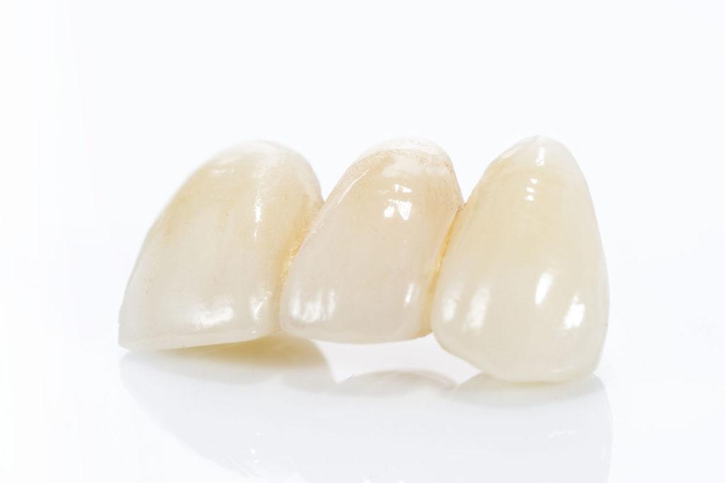 Keramik Kronen und Brücken, Zahnersatz in der Zahnarzt Praxis Finkeldey und Dr. Laurisch in Korschenbroich